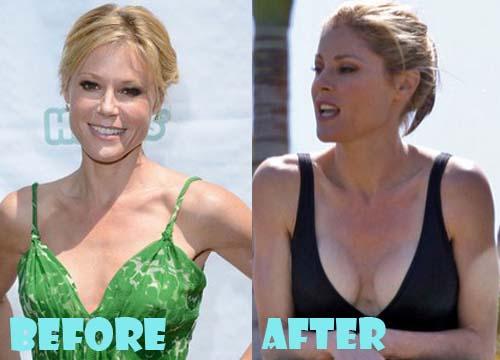 Julie Bowen Plastic Surgery Breast Implant