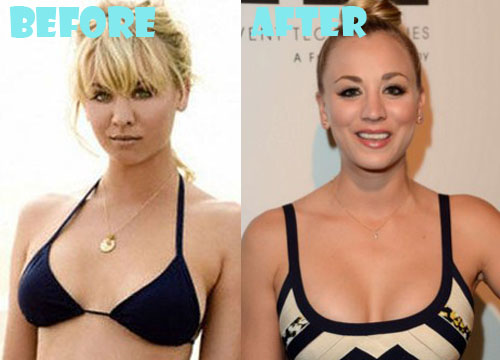 Kaley Cuoco Plastic Surgery