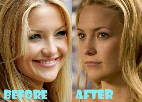 Kate Hudson Plastic Surgery Nose Job