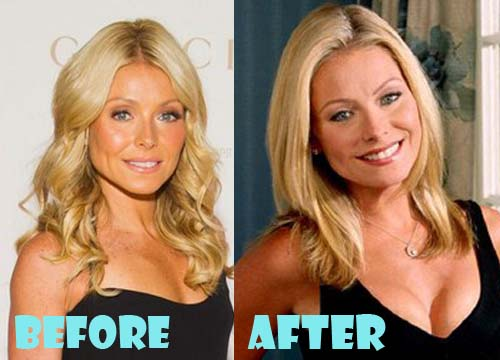 Kelly Ripa Plastic Surgery Breast Implant
