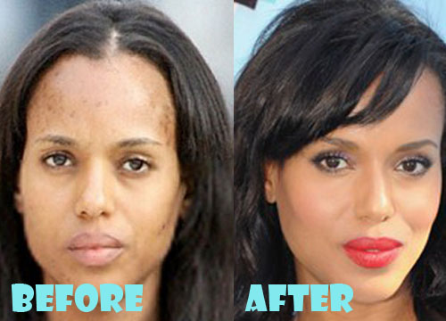 Kerry Washington Plastic Surgery Nose Job