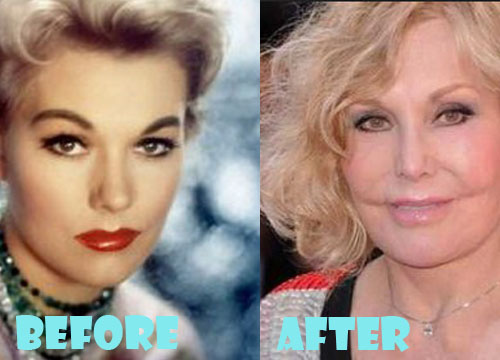 Kim Novak Plastic Surgery Gone Wrong