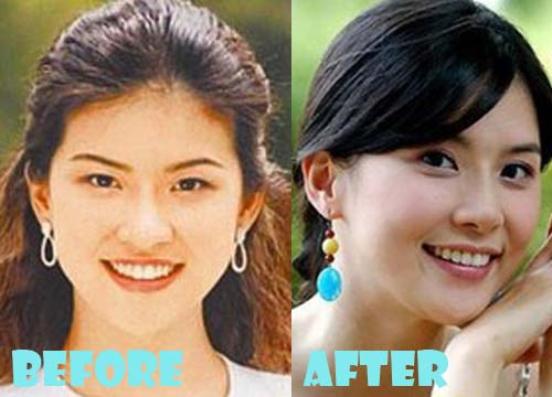 Lee Bo Young Plastic Surgery Nose Job, Eyelid Surgery