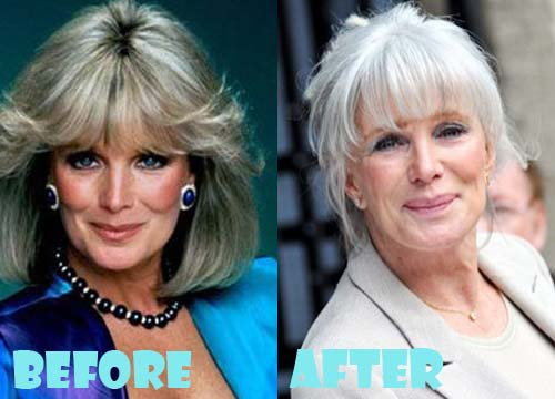 Linda Evans Plastic Surgery Dermal Filler