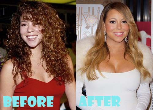 Mariah Carey Plastic Surgery Breast Implant