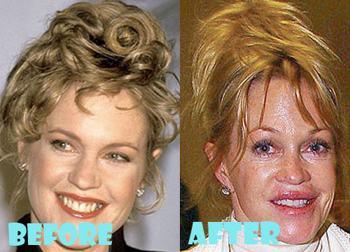 Melanie Griffith Bad Plastic Surgery