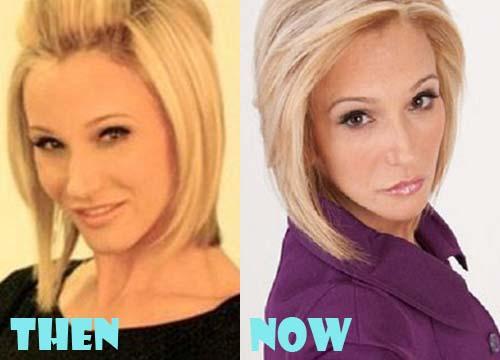 Paula White Plastic Surgery Botox, Facelift