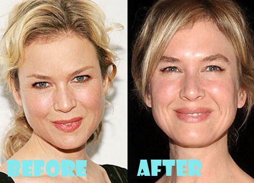 Renee Zellweger Plastic Surgery Before and After Pictures ...