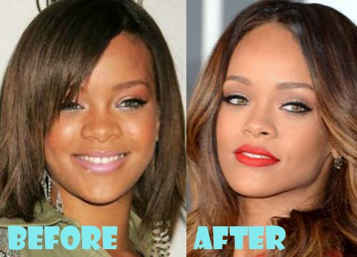 Rihanna Plastic Surgery Nose Job