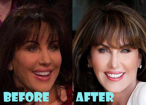 Robin McGraw Plastic Surgery Botox, Nose Job