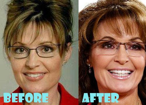 Sarah Palin Plastic Surgery