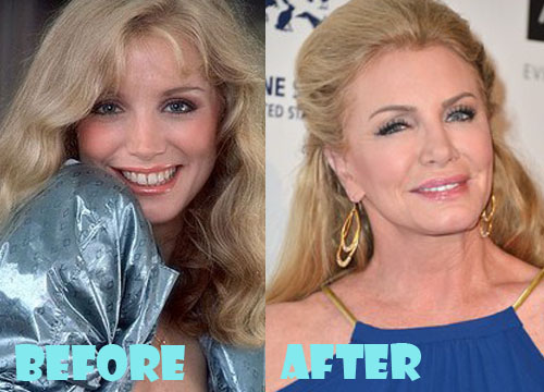 Shannon Tweed Plastic Surgery Nose Job