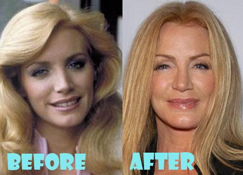Shannon Tweed Plastic Surgery