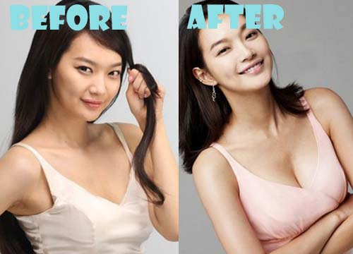 Shin Min Ah Plastic Surgery Breast Implant