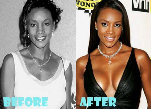 Vivica Fox Plastic Surgery Breast Implant