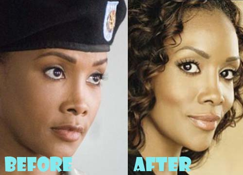 Vivica Fox Plastic Surgery Nose Job