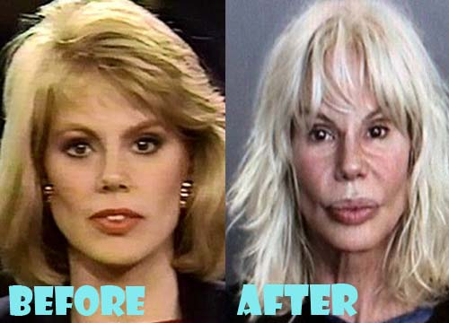 Bree Walker Plastic Surgery Facelift