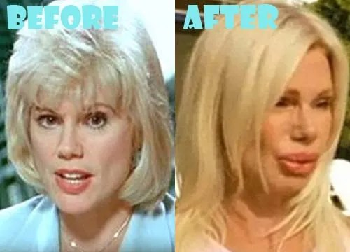 Bree Walker Plastic Surgery Lip Injection