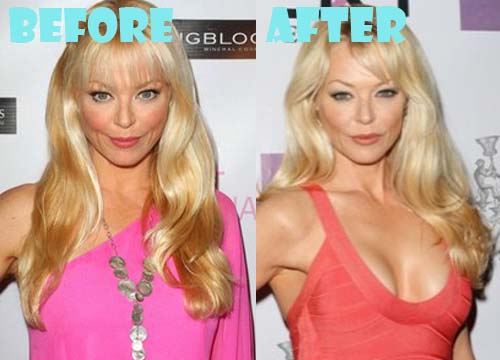 Charlotte Ross Plastic Surgery