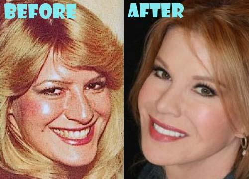 Cindy Jackson Plastic Surgery Botox, Facelift