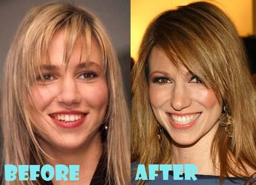 Debbie Gibson Plastic Surgery Nose Job