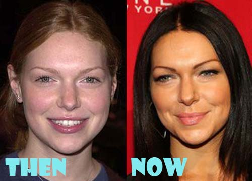 Laura Prepon Plastic Surgery