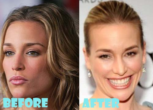 Piper Perabo Plastic Surgery