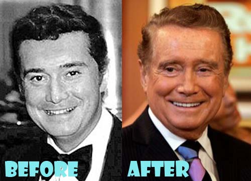 Regis Philbin Plastic Surgery