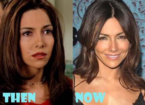 Vanessa Marcil Plastic Surgery Botox, Facelift