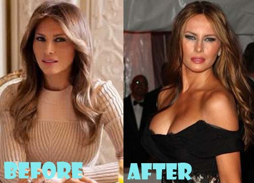 Melania Trump Plastic Surgery Breast Implant