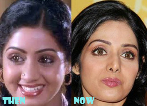Sridevi Plastic Surgery Nose Job