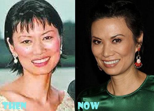 Wendi Deng Plastic Surgery Blepharoplasty