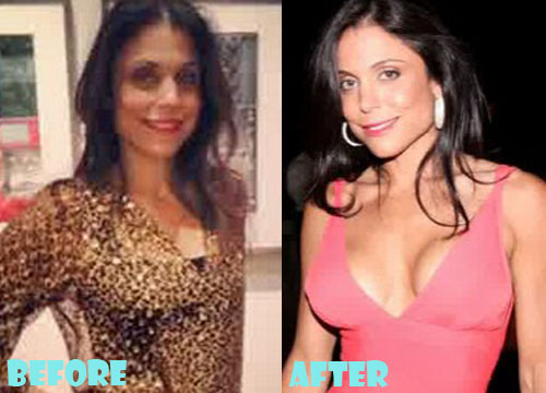 Bethenny Frankel Plastic Surgery Breast Implant