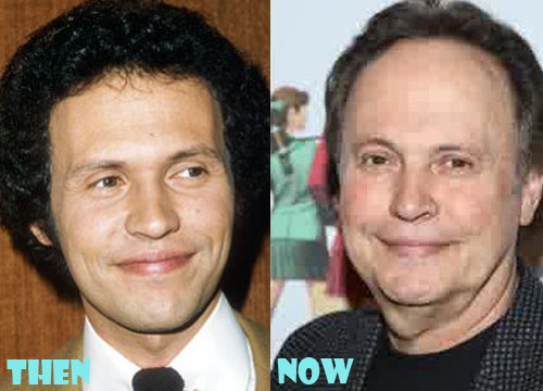 Billy Crystal Plastic Surgery