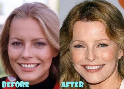 Cheryl Ladd Plastic Surgery Nose Job