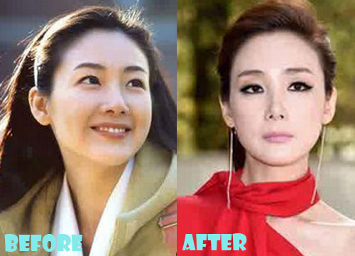 Choi Ji Woo Plastic Surgery Eyelid Surgery