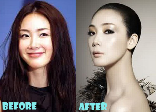 Choi Ji Woo Plastic Surgery Nose Job