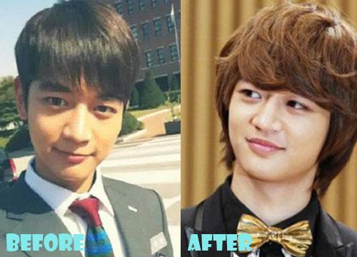 Choi Minho Plastic Surgery