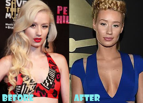 Iggy Azalea Plastic Surgery Boob Job (Breast Implant)