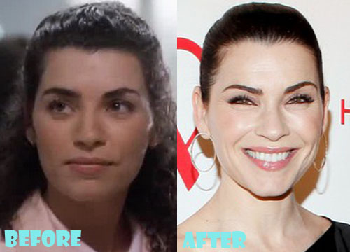Julianna Margulies Plastic Surgery Nose Job