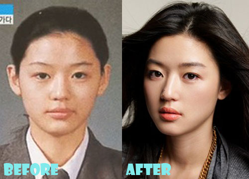 Jun Ji Hyun Plastic Surgery Nose Job