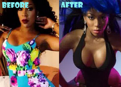 K Michelle Plastic Surgery Breast Implant