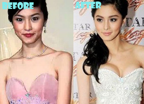 Kim Chiu Plastic Surgery Breast Implant