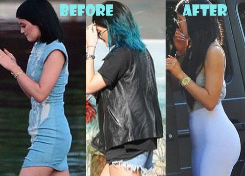 Kylie Jenner Plastic Surgery Butt Implant