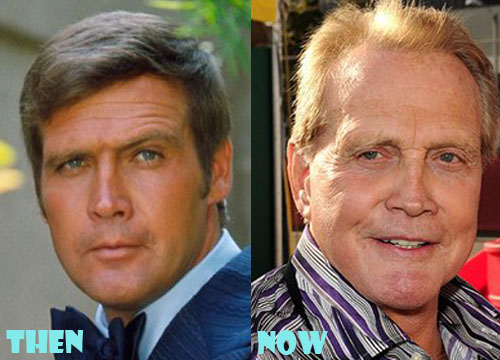 Lee Majors Plastic Surgery