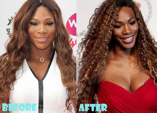Serena Williams Plastic Surgery Breast Implant