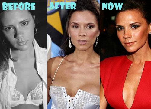 Victoria Beckham Plastic Surgery Boob Job