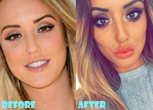 Charlotte Crosby Plastic Surgery Lips Fillers