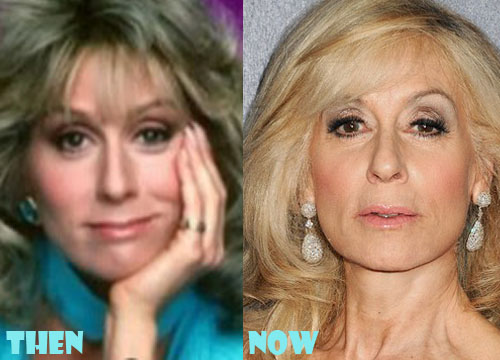 Judith Light Plastic Surgery Botox