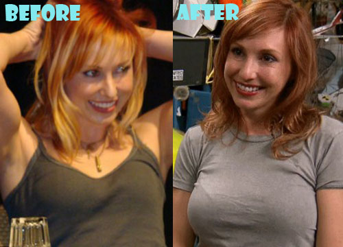 Kari Byron Plastic Surgery Breast Implant